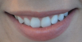 smile blog before